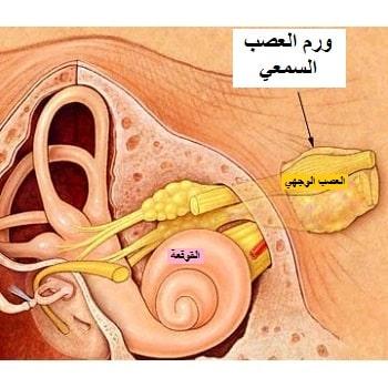 عملية ورم العصب السمعي في ايران